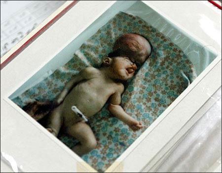 Шоссе смерти в Ираке: 15 лет жертвы радиации рожают уродов. ШОКИРУЮЩИЕ КАДРЫ