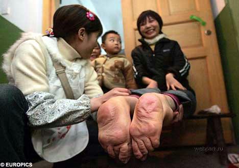 Ноги наоборот
