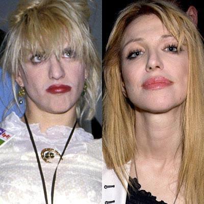 Знаменитости до и после пластической операции: почувствуйте разницу