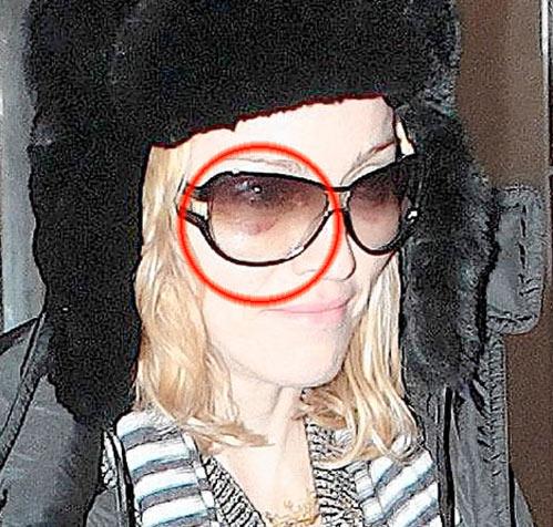 Откуда у Мадонны синяки на лице?