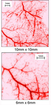 Новый подход к наблюдению мягких тканей человека
