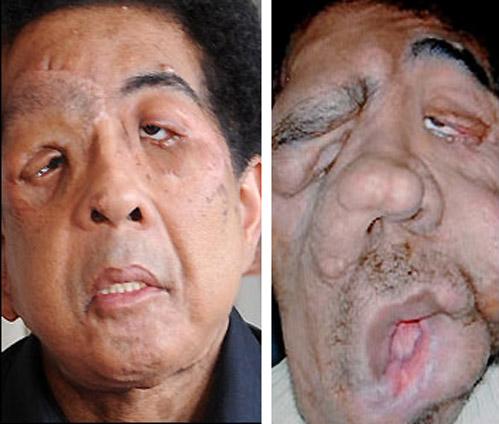 Врачи пересадили лицо «человеку-слону»