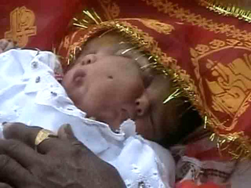 В Индии родилась девочка с двумя лицами!