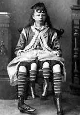 Четырехногая женщина Миртл Корбин