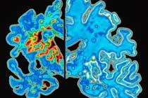 Российский антиаллергический препарат помогает при болезни Альцгеймера