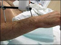 Произведена первая трансплантация двух рук