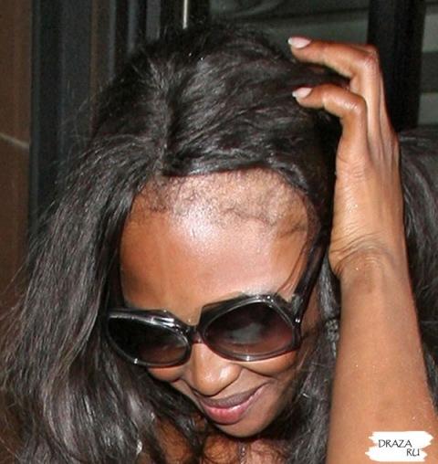 Наоми Кэмпбелл продолжает лысеть (ФОТО)