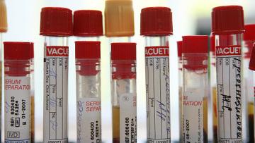Ученые раскрыли механизм естественной защиты от вируса СПИДа