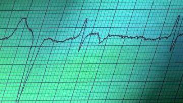 У американских сектантов нашли мутацию, защищающую от болезней сердца