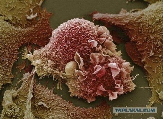 Микроизображения из глубин человеческого тела