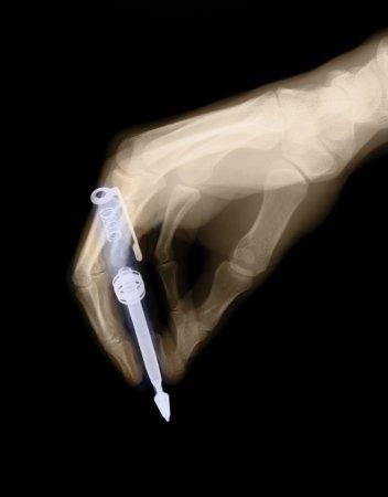 Через рентген