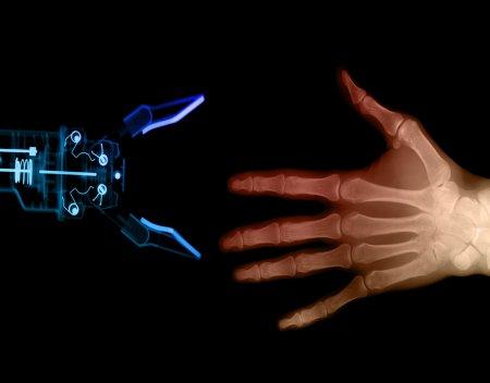 Через рентген - 2