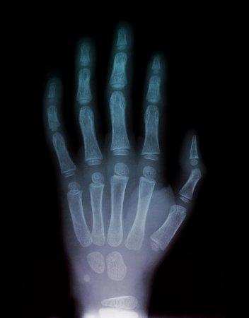 Через рентген - 3