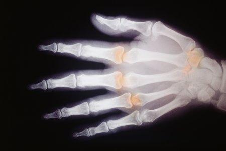 Через рентген - 4