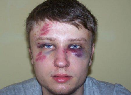 """Скандал! На """"Басовішчы"""" палякі зламалі нос беларусу"""