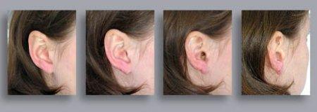 Микронаушник можно не увидеть, даже заглянув студенту в ухо