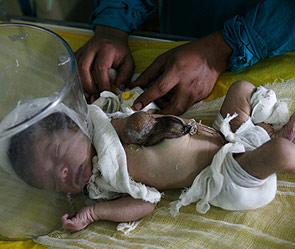 В Индии родился мальчик с внешним сердцем