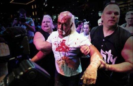 Халку Хогану разбили лицо на прессухе