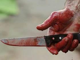 Психически нездоровая женщина в Минске отрезала спящему мужу гениталии