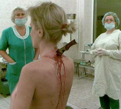 Врачи спасли девушку с ножом в спине