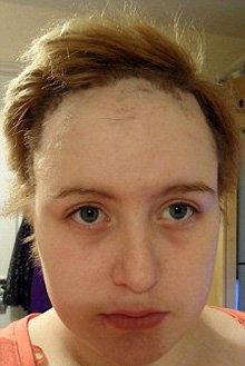 Девушка облысела, помыв голову шампунем известной марки