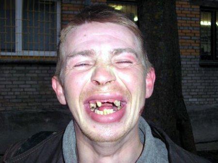 Пациент по вине могилевского лжестоматолога остался без передних зубов