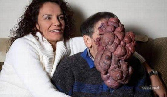 Самые редкие, ужасные и неизлечимые заболевания