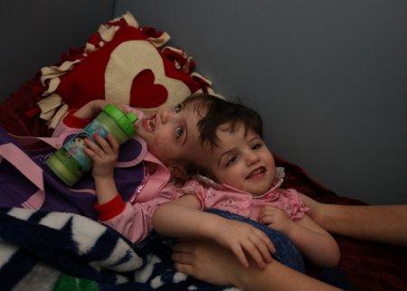 Сиамские близнецы Криста и Татьяна