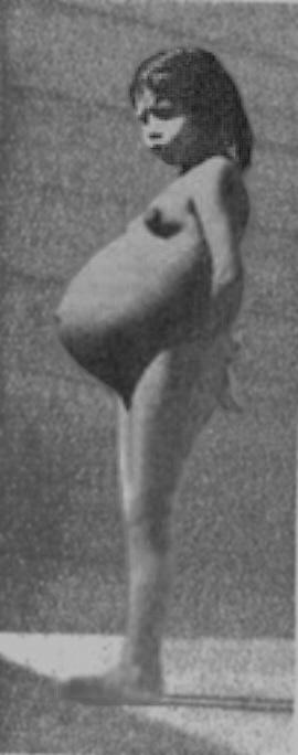 Лина Медина, 5-летняя мама (Перу, 1939г.)