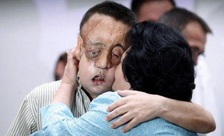 Результаты второй в мире пересадки лица