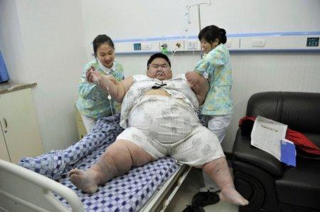 Лян Юн - самый толстый китаец в мире