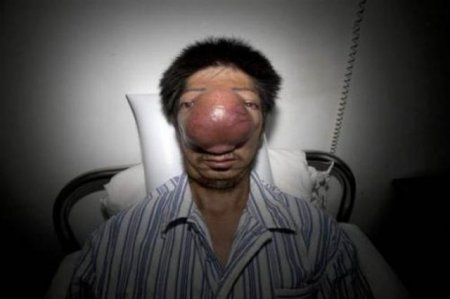 Китаец и его нос