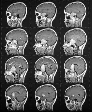 Десятка самых нелепых способов лечения