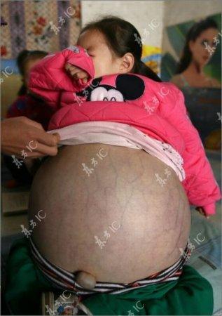 Маленькая девочка с огромным животом