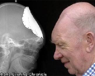 У пенсионера заново вырос череп