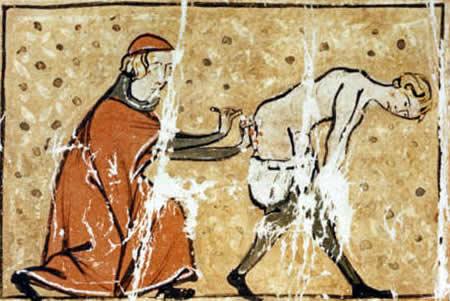 Средневековая медицина: 10 мучительных способов исцеления