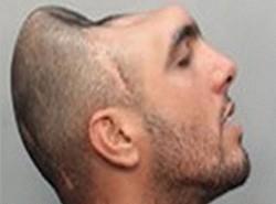 Полиция арестовала преступника с половиной головы