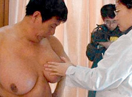 У китайца выросла грудь шестого размера