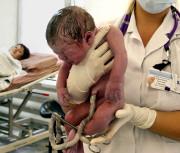 ШОК. Что увидел хирург, разрезав матку беременной женщины!