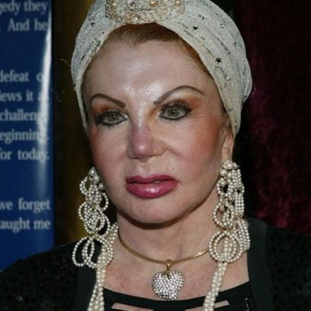 Мама Сталлоне и ее пластические операции