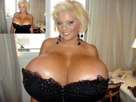 Обладательница самой большой груди в мире пыталась покончить с собой