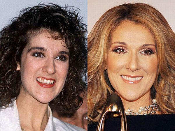 Зубы Голливуда: до и после
