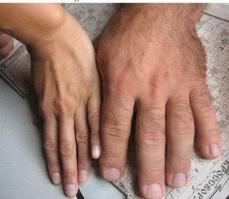 Рука чемпиона по армреслингу