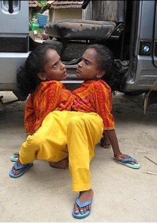 Сросшиеся близнецы