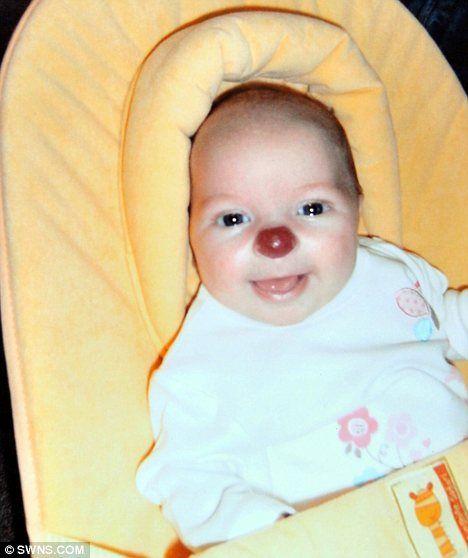 Девочка с врожденным носом клоуна