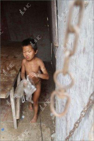 Китайский ребенок три года на цепи - не умеет говорить, а кушает только руками. ФОТО