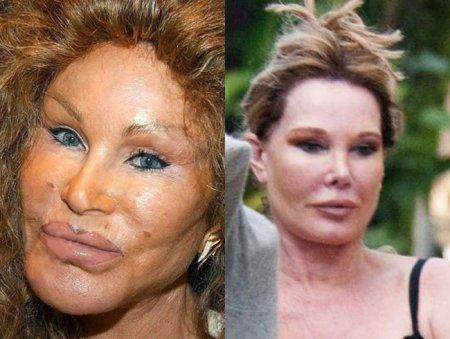 Jocelyn Wildenstein починили лицо
