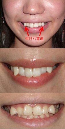 Красивые зубы по-японски