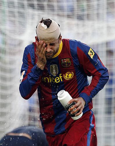 7 худших матчей «Барселоны» Гвардиолы.