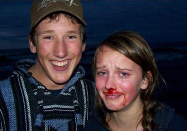 Романтическое фото закончилось кровавым кошмаром